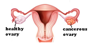 ovarian-cancer-01